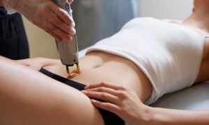 5 Reasons Why Laser Hair Removal Is Worth Every Penny_2